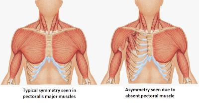 poland+syndrome+-+missing+pectoralis+major+(anatomical+drawing)