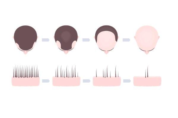 creatine kaal worden